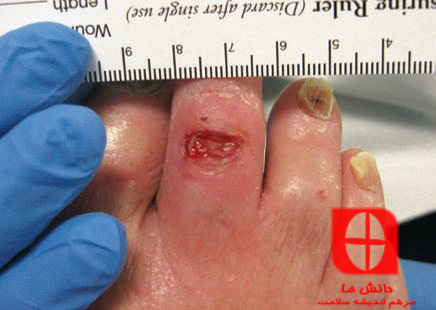 Location of wound on dorsal foot