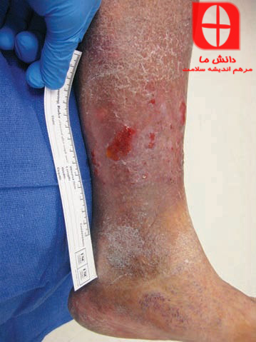 Location of wound on lower extremity